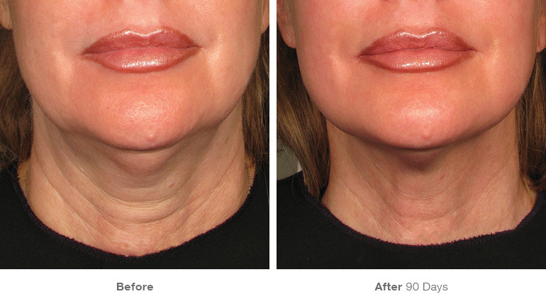 before_after_ultherapy_results_neck3